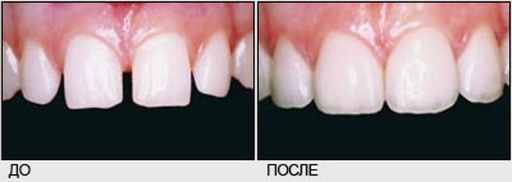 Сколько стоит восстановление зуба